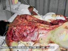 gauteng-victim-of-torture.jpg