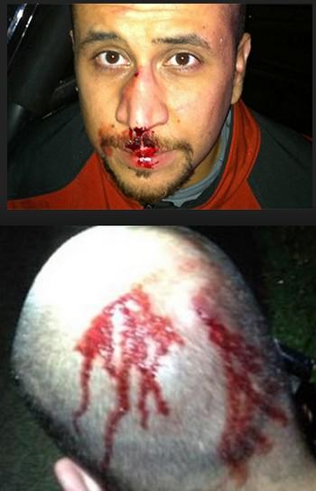 Zimmerman-injuries