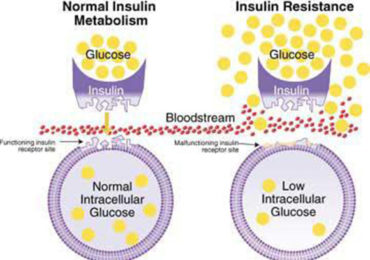 Insulin Intolerance Explained