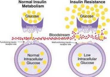 Insulin Intolerance Explained