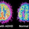 Dr. Duke exposes latest Zio psychopathology! & shocking ADHD facts!