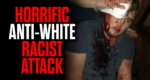 Horrific Anti-White Racist Attack Buried by the Media