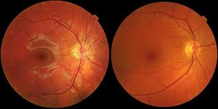 Dr Duke – His Amazing Reversal of AMD (Macular Deeneration Offers Hope for Millions Facing Blindness!